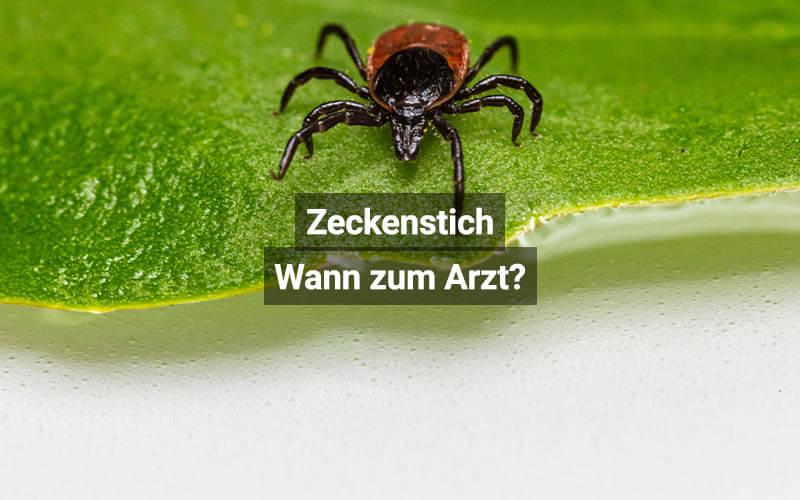 Zeckenstich Wann Zum Arzt Schweiz